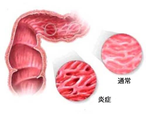 過敏性腸症候群の症状を緩和するアドバイス