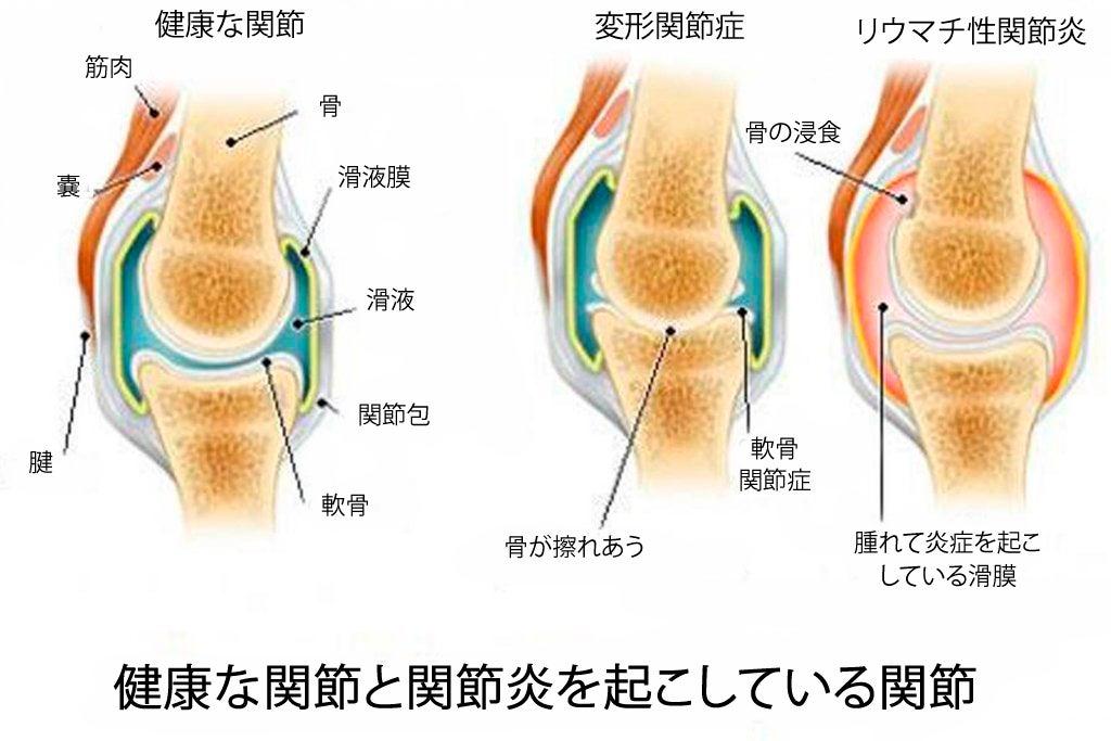 関節炎、変形関節症、骨粗しょう症の違い