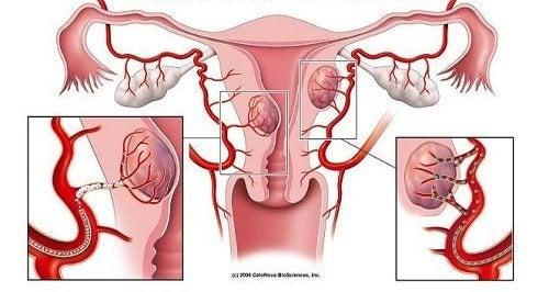 子宮筋腫の警告サイン7つ