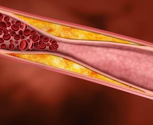 血管。血流