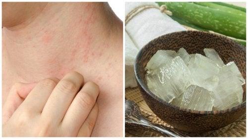 日光アレルギーや温熱蕁麻疹を解消する自然療法7選