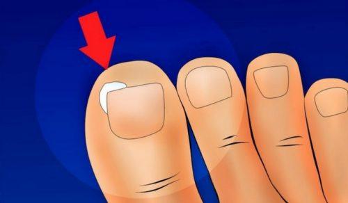 陥入爪を予防する方法