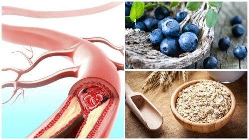 動脈の健康を改善する9つの食品