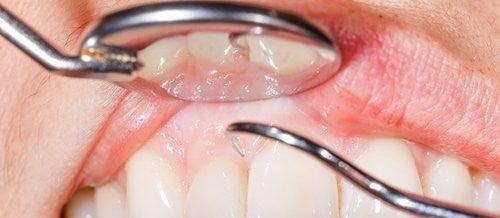 歯磨き中に歯茎から血が出る14の理由