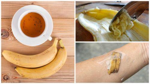 バナナの皮を使った自然療法5選