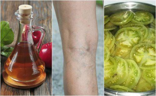静脈瘤に効くお酢とグリーントマトを使った家庭療法