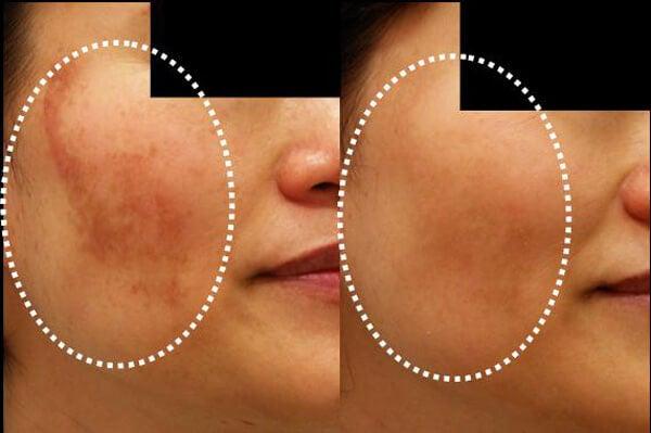 お肌にできる黒いシミ、肝斑を防ぐ5つの自家製フェイシャルマスク