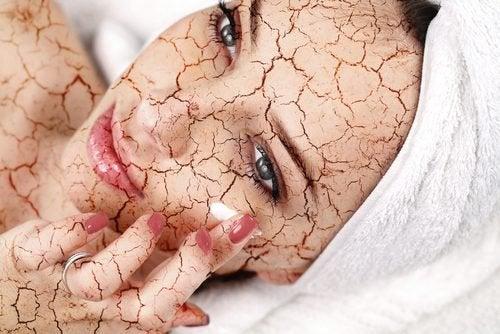 乾燥肌を防ぐ方法