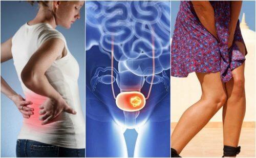 要注意!膀胱がんの7つのサイン