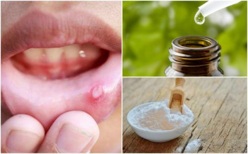 口内炎の症状を緩和する6つの自然療法