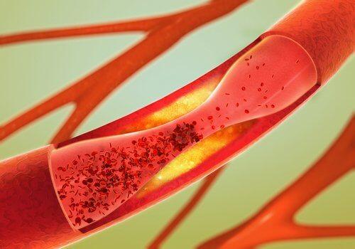 動脈の詰まりを防ぐ12の食べ物