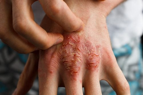乾癬の治療法