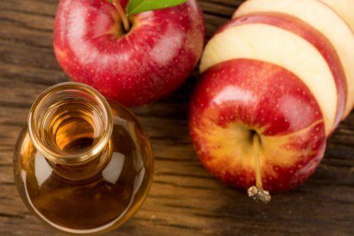 アップルサイダービネガー 頭痛に効果ある自然療法