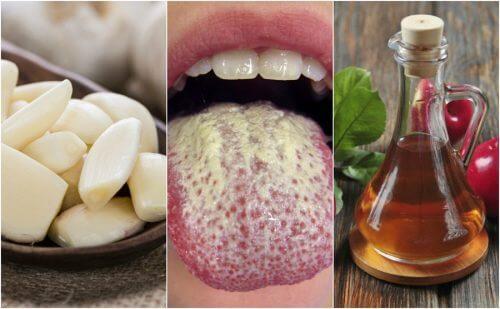 カンジダの増殖を抑える6つの自然療法