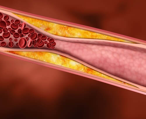 コレステロール値を下げる5つの良質な脂質