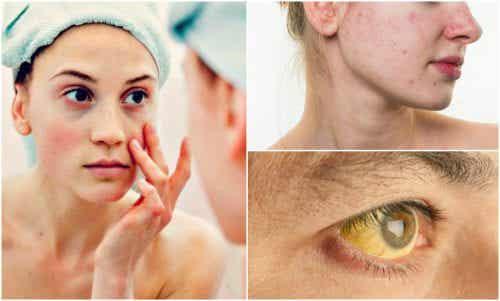 顔に現れる「栄養欠乏」の7つの兆候