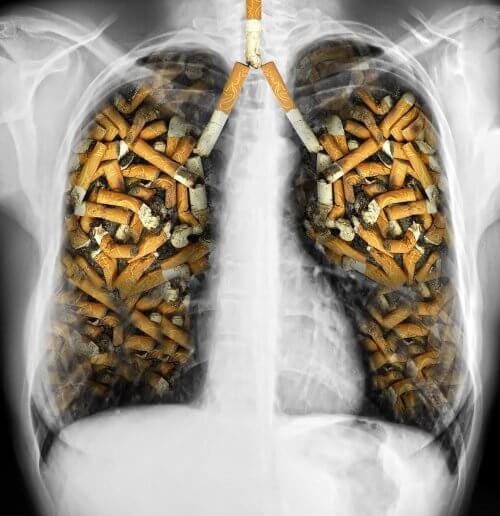タバコに毒された肺