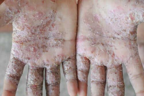 疥癬(かいせん)に効く3つの自然療法