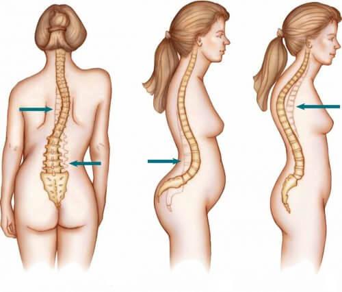 脊柱側弯症の脊椎の状態