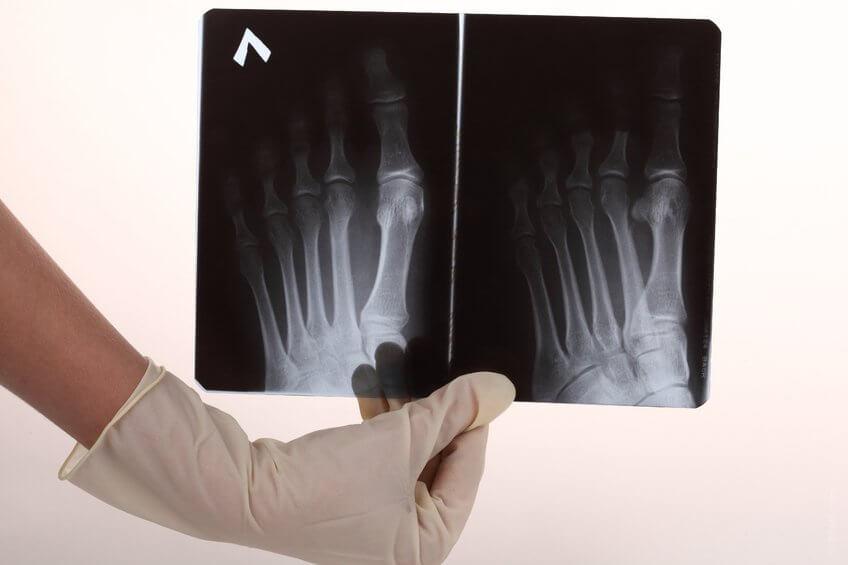 足の骨のレントゲン写真