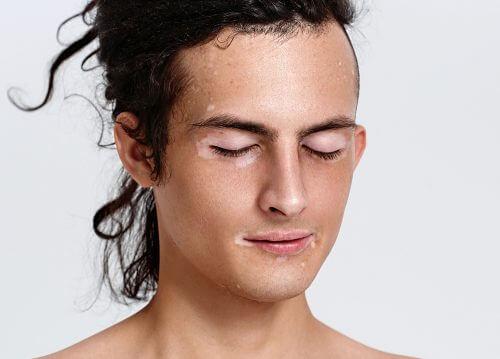 顔に白斑のある人