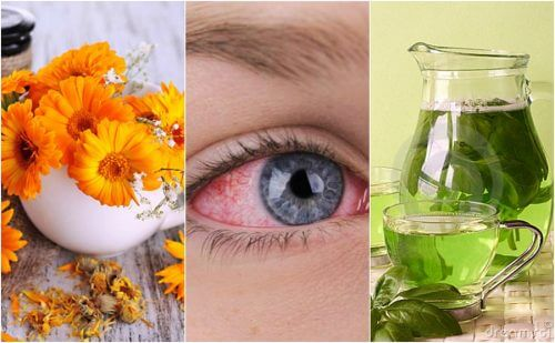 結膜炎の症状を緩和する5つの自然療法
