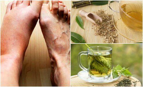 尿酸値を下げる5つの自然療法