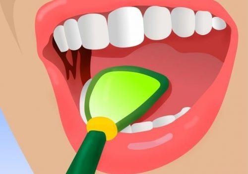 口臭を解消する5つのコツ