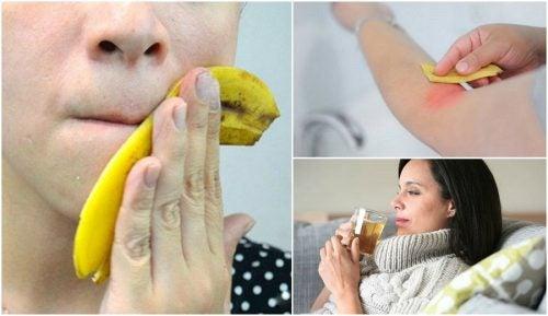 バナナの皮の知られざる活用法8選