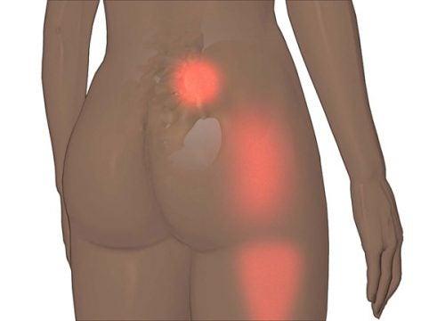 仙腸関節痛と椎間板ヘルニア