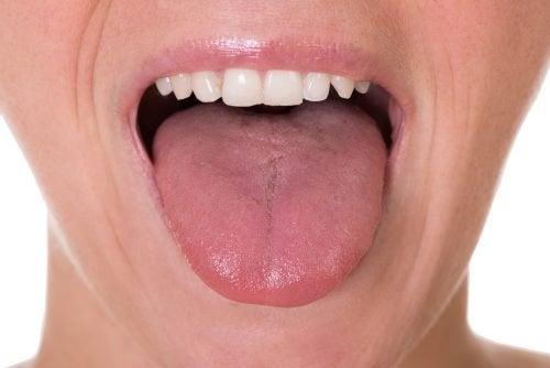 舌癌 5つの初期症状