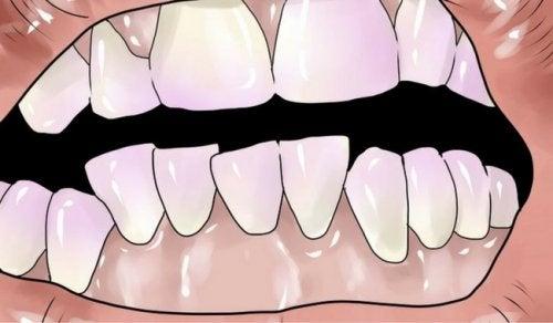歯石除去に効果的な自然療法