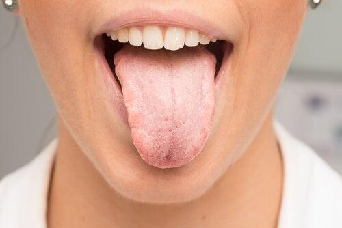 舌が白くなる原因