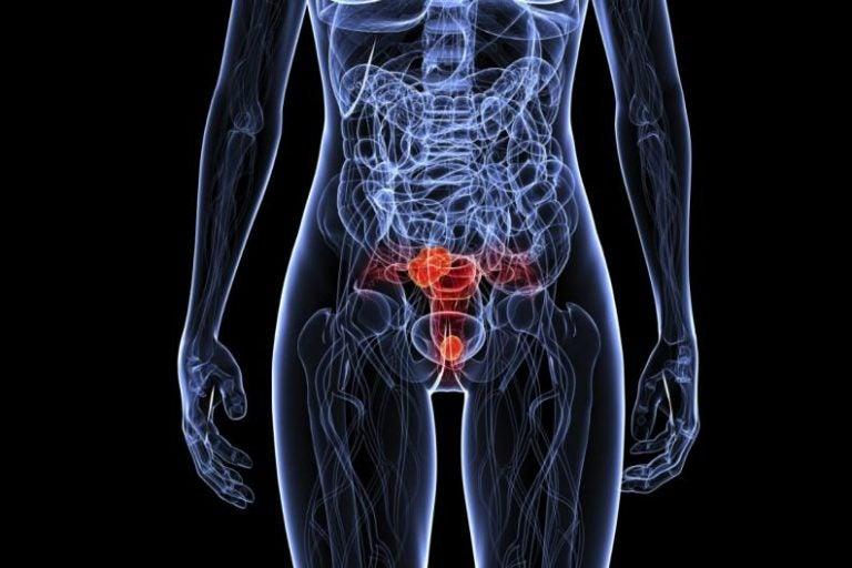 子宮が赤いレントゲン風画像