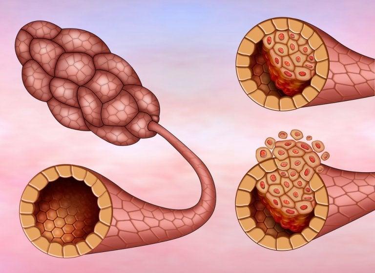 乳管がん イラスト