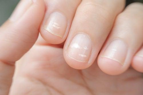 爪に白い線が現れるのはなぜ?消す方法は?