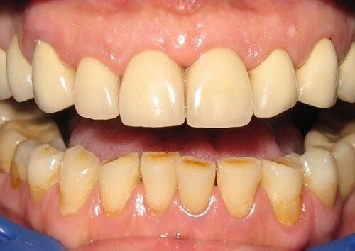 黄色くなった歯