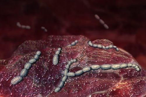 猩紅熱の原因