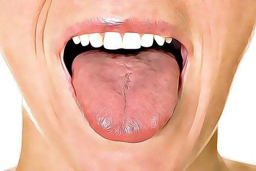 舌の口内炎に効く6つの自宅療法
