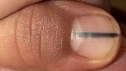 爪の黒い線は癌の兆候?