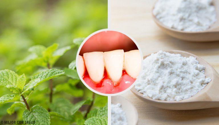 歯肉炎に効果あり!5つの自然療法