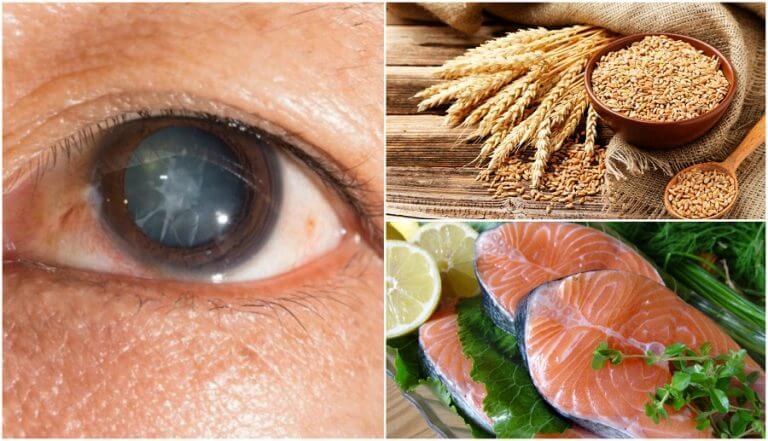 白内障のリスクを軽減する7つの食べ物