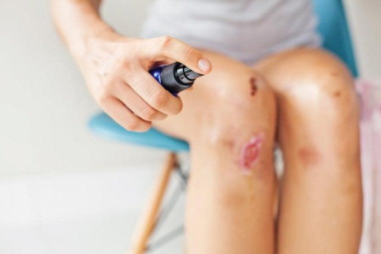 膝の傷を消毒する