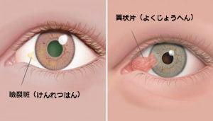 角膜の良性腫瘍:瞼裂斑と翼状片について