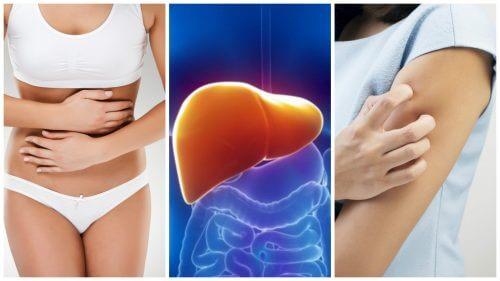 肝臓に毒素が蓄積されている8つの兆候