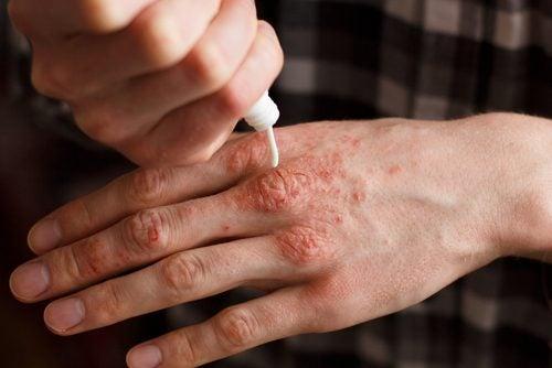 乾癬の治療に効果的な6つのナチュラルクリーム