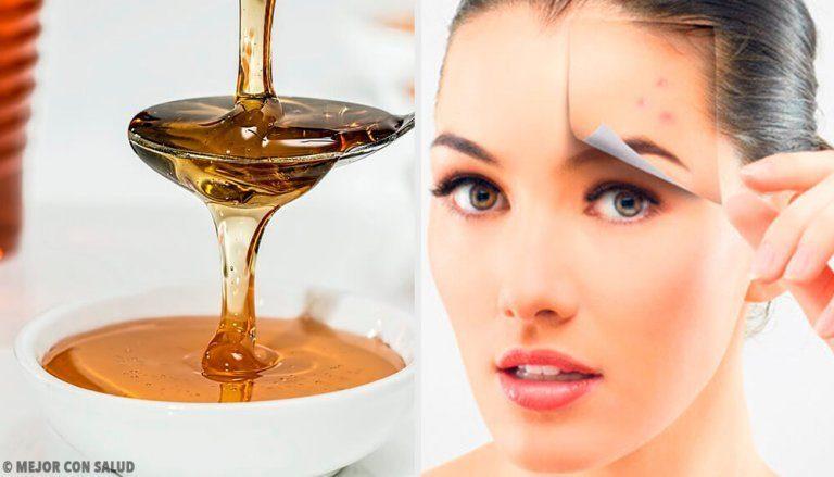 健康な肌を作る天然のスキンケア4選