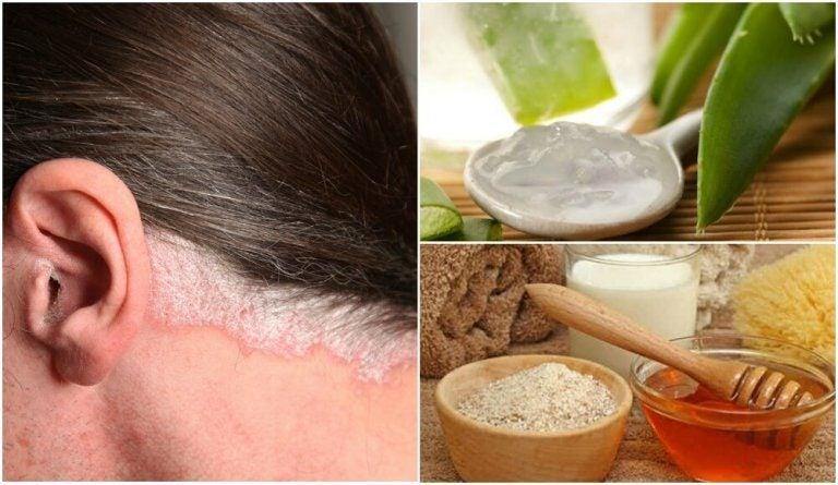 頭皮の乾癬を和らげる5つの自然療法