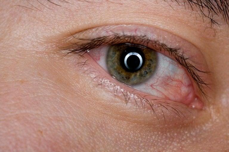 充血した目