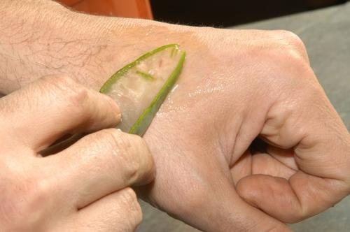 手の甲にアロエの汁を塗る